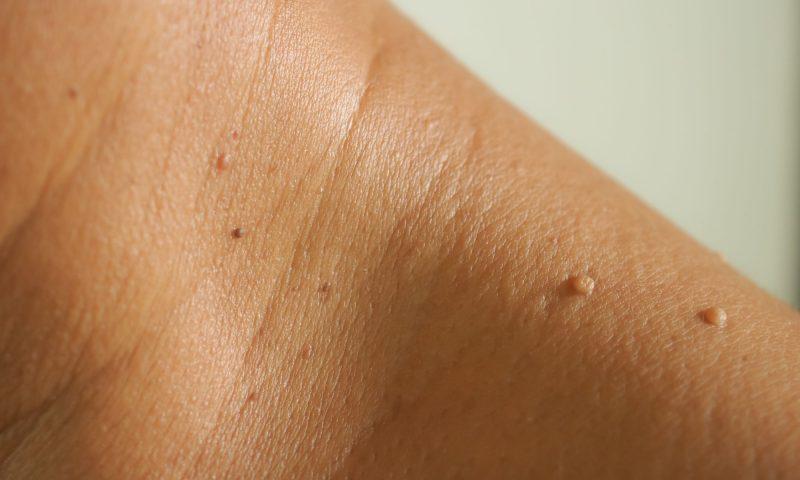goedaardige huidtumoren